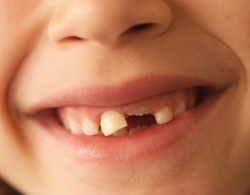 closeup of smiling child with missing and loose teeth